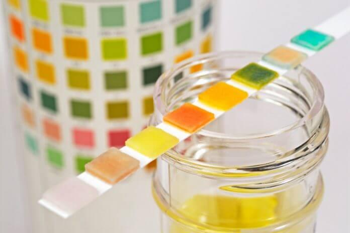 merenje proteina u urinu
